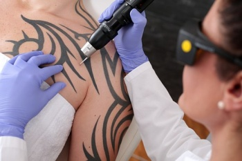 Tattoo Removal, Unwanted tattoos