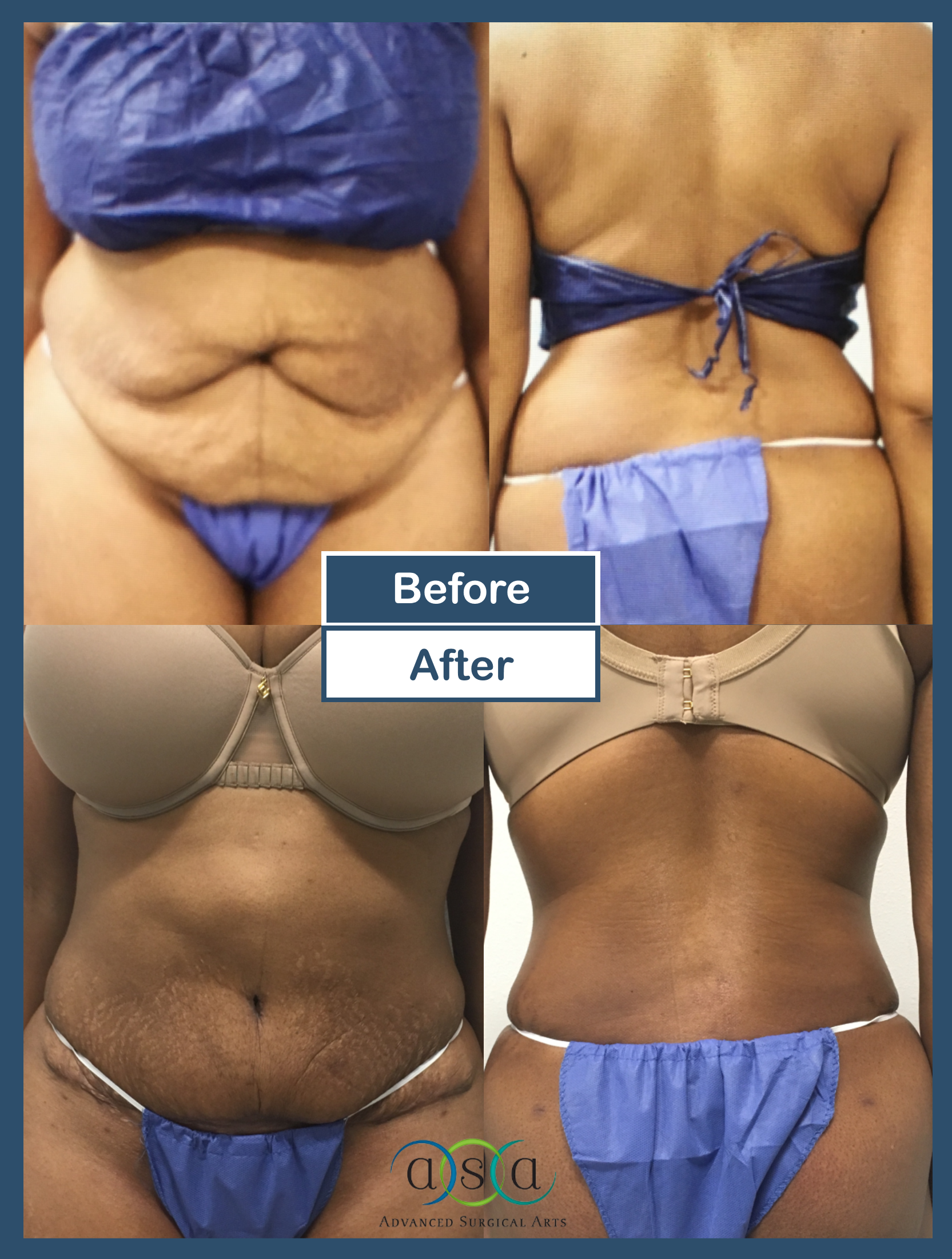 before and after laser liposuction