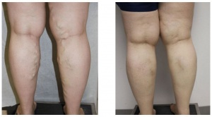 Spider and Vein Treatments