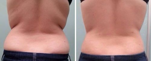 Skin Tightening and Body Contouring, TightSculpting