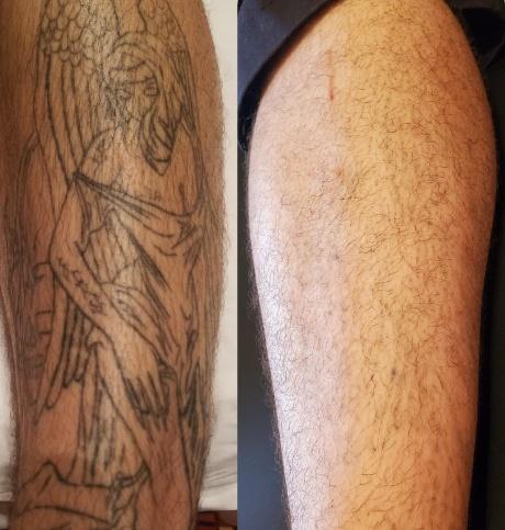Tattoo Removal B&F