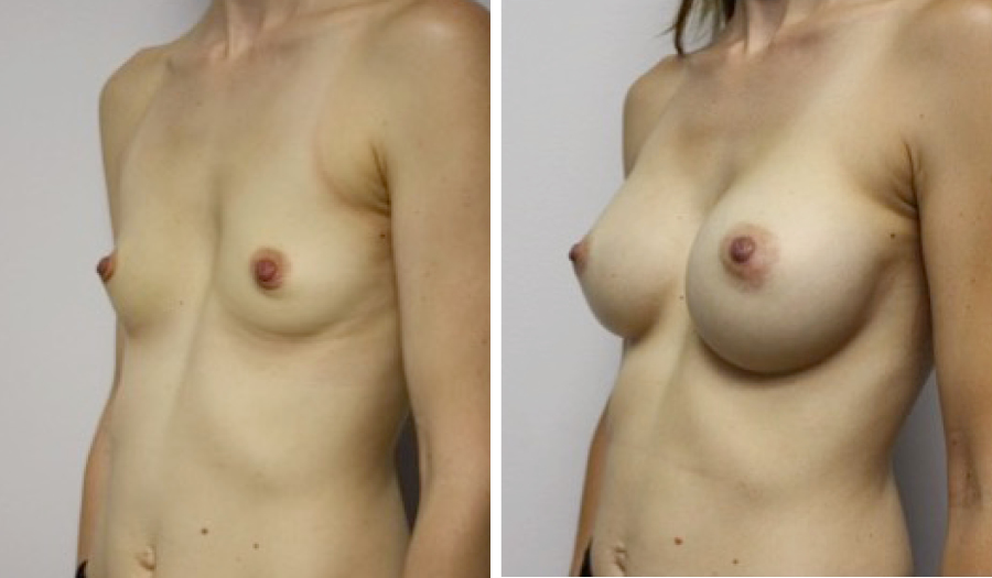 Breast Augmentation, Cosmetic Surgery by Dr. Lee