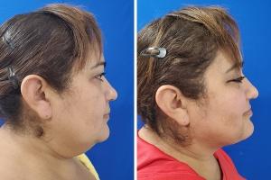 Liposuction, double chin liposuction
